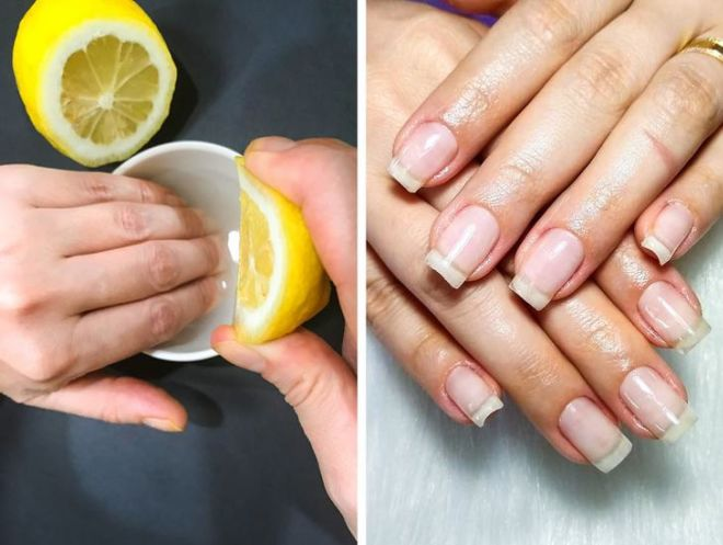 10 Ways That Can Help You Treat Brittle Nails