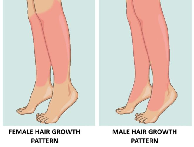 Excess Hair Growth In Women Is A Symptom You Shouldn't Ignore